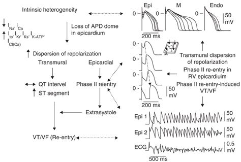 Proposed mechanism for the Brugada syndrome   Download