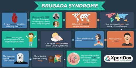 Brugada Syndrome: Find Best Doctors and Hospitals   Xpertdox